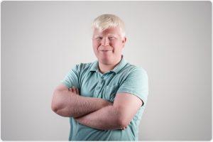 albinos homme